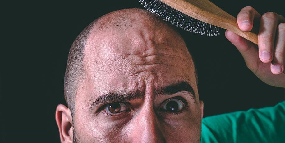 Dags för hårtransplantation?